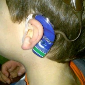 Canucks Hearing Aid